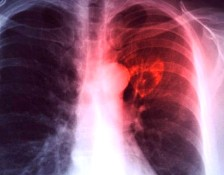 Tuberculosis3_1
