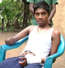 B Yakub, who lost his right hand while working at a road construction site in July