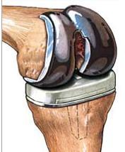 (courtesy:www.orthopedicsurgerybook.com)