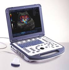 portable ultrasound machine