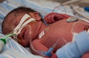 premature child