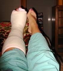 fractured left leg