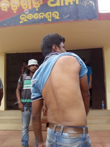 Jitendra Mohanty, photographer of 'Samay' showing his injuries sustained in the assault (OST Photo)