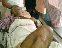 Kshirod Mishra, whose hands were chopped off by a group of miscreants on Tuesday