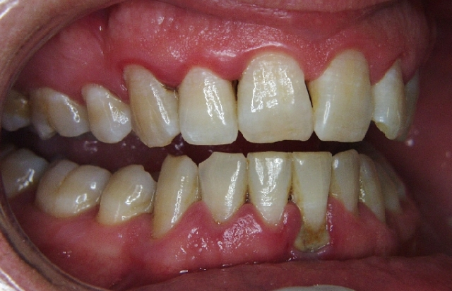 Gum-Disease-Before-Treatment