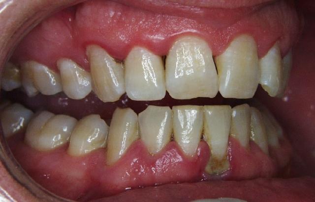 Gum-Disease-Before-Treatment