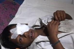 Keonjhar minor hurt in bomb explosion