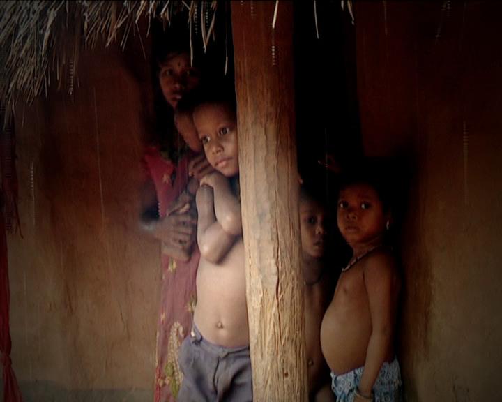 Nagada malnutrition