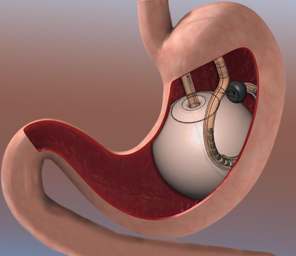 Pic Courtesy: www.obesitysurgeryindia.net