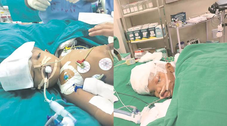 Odisha twins Jaga-Kalia stable and improving: AIIMS