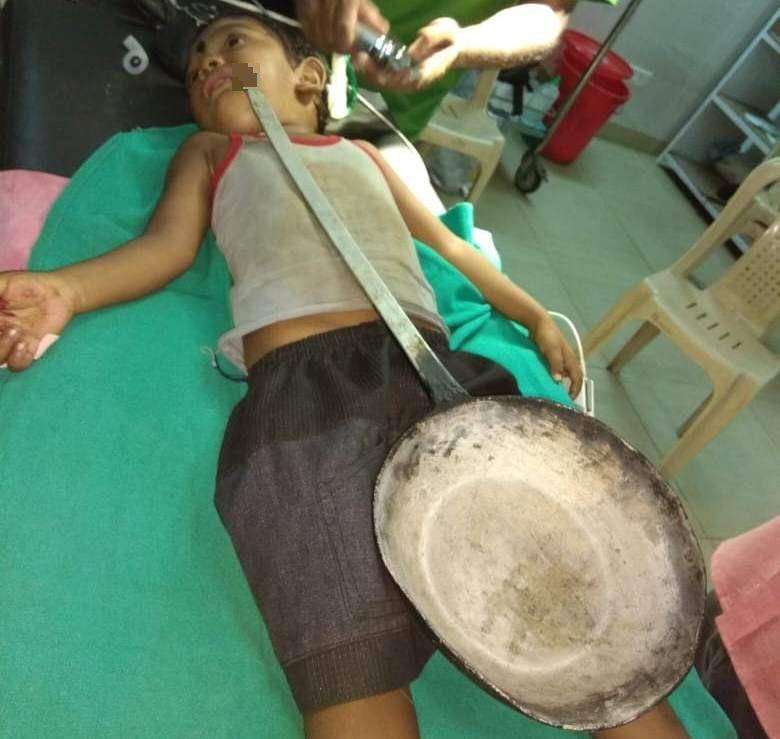 injured boy