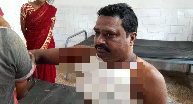 traders injured_censored