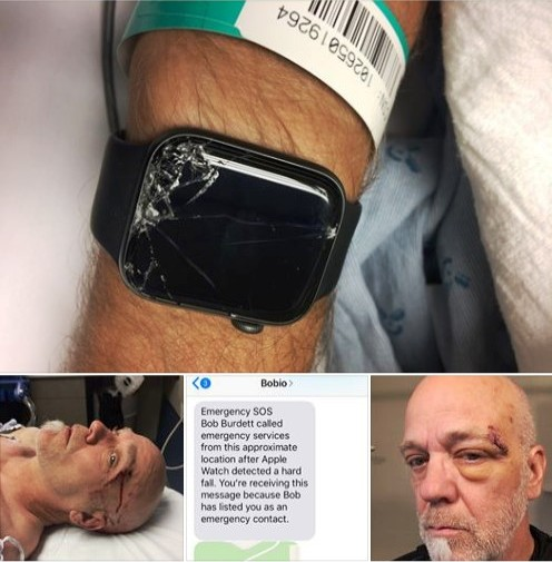 Apple Watch helps paramedics find man after mountain bike accident
