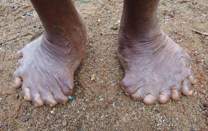 abnormal toes