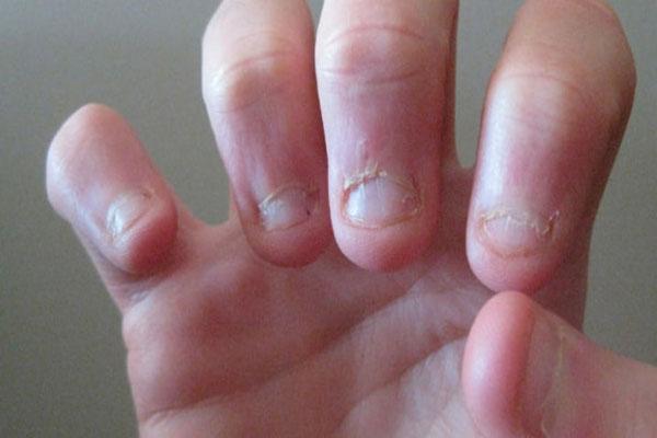 nail-biting